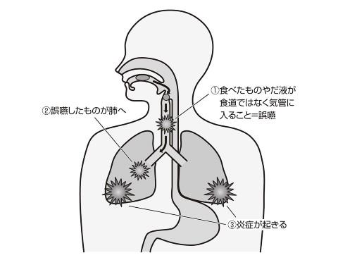 は 誤 肺炎 嚥 性 と 誤嚥性肺炎(ごえんせいはいえん)とは